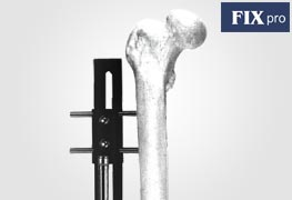 Bone Lengthening Fixators
